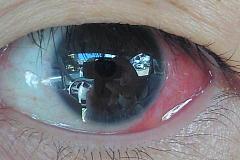 左眼のアップ